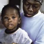 HIV/AIDS' de  Ağrı Sendromları ve Tadavi Seçenekleri